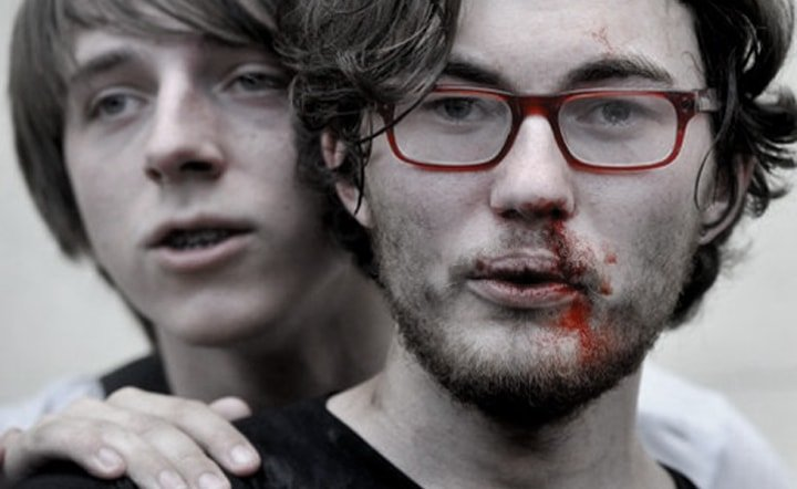 Beaten Gay Russian Protesters